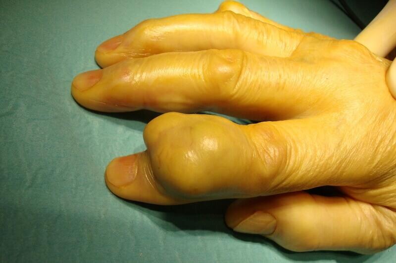tumeur au doigt synoviale de la main - tumeur a cellule geante