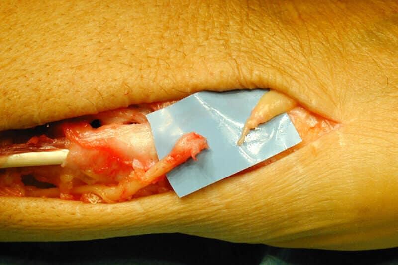 photo section nerf du doigt avec nevrome et paralysie distale du doigt