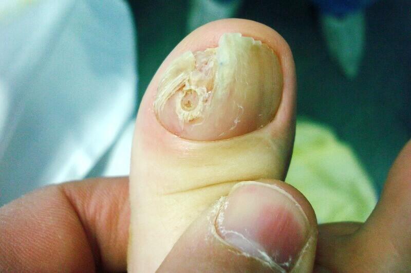 maladie ongle doigt de la main causée par mycose des doigts