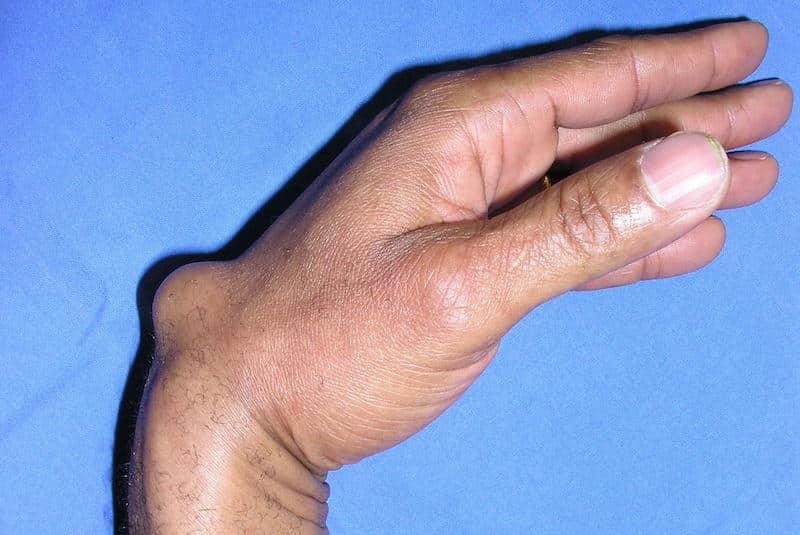 déformation poignet gauche à cause d'un kyste synovial