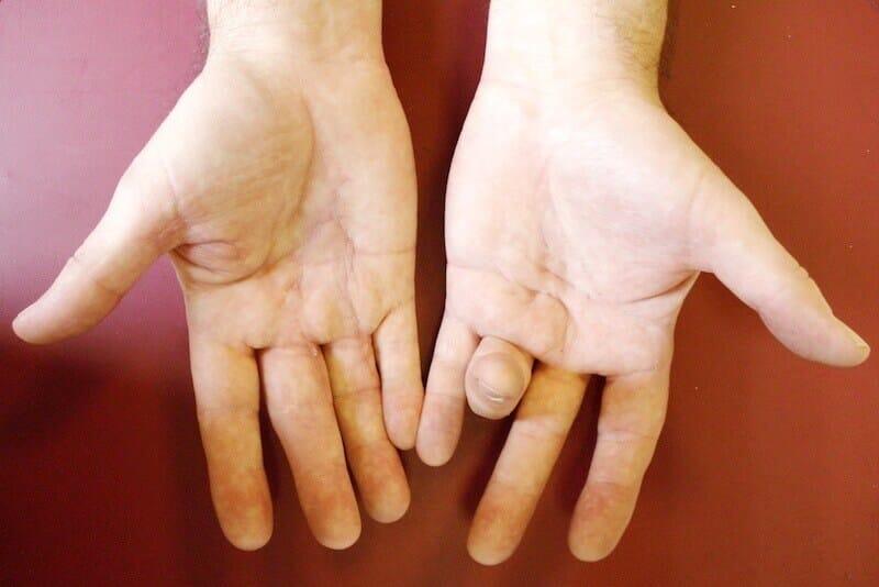 maladie de dupuytren - corde rétractile du doigt appelée corde de dupuytren