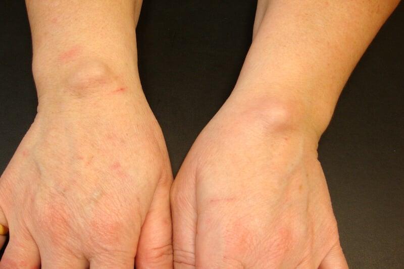 Boule kyste dorsal poignet - Atteinte bilatérale 2 mains