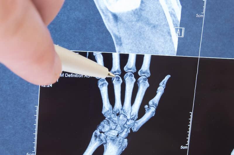 pr eric roulot - examen clinique jouvenet paris 16 - chirurgie des doigts de la main Paris