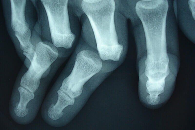 radiographie des doigts luxation interphalangienne de deux doigts